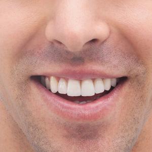 perfect-smiles-10