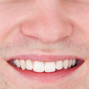 perfect-smiles-12