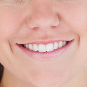 perfect-smiles-14