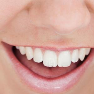 perfect-smiles-16