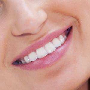 perfect-smiles-17
