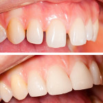 dental restoration richmond dental suite