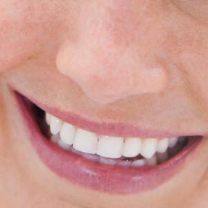 perfect-smiles-20