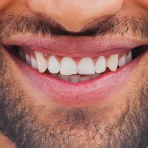 perfect-smiles-22