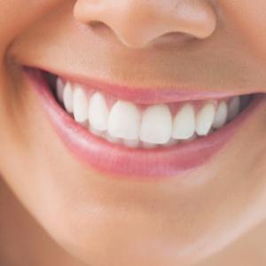 perfect-smiles-23